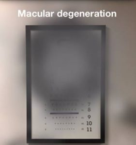 Macular degeneration causes loss in the center of the field of vision.