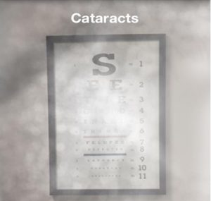 The main symptom is blurry vision. Having cataracts can be like looking through a cloudy window.
